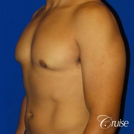 Mild Gynecomastia - Standard Areola Incision - After Image 2