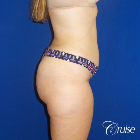 Liposuction Flanks & Abdomen - After Image 4