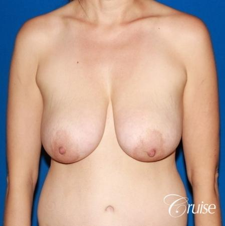 best reduction without implants in Newport Beach - Before Image 1