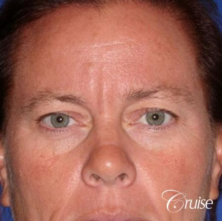 female temple lift and upper eyelid surgery - Before Image