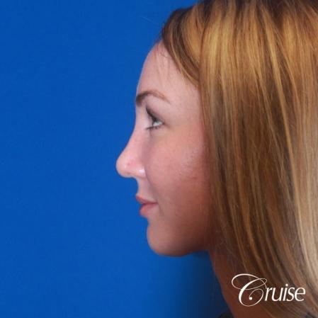 best rhinoplasty with natural results -  After Image 3