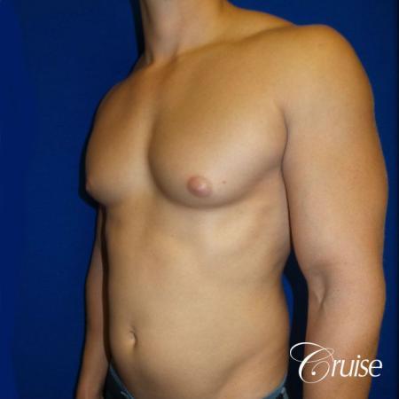 Best before and after gynecomastia pictures - Before Image 2