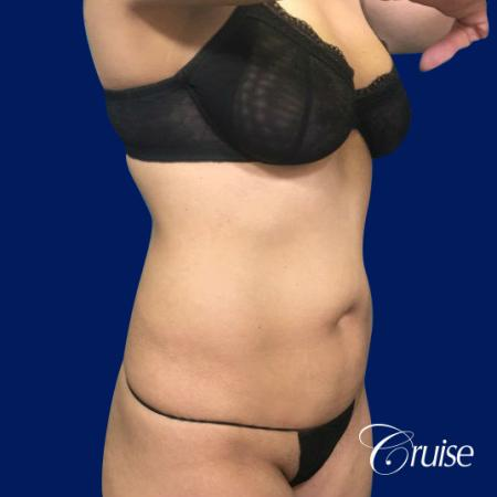 Tummy Tuck Standard Incision - Before and After Image 5