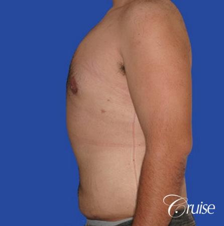 male liposuction abdomen flanks with Gynecomastia -  After Image 4