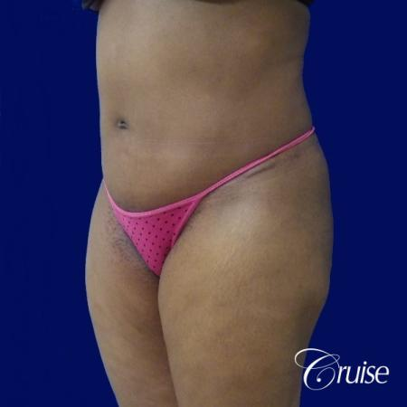 Liposuction Flanks - After Image 3