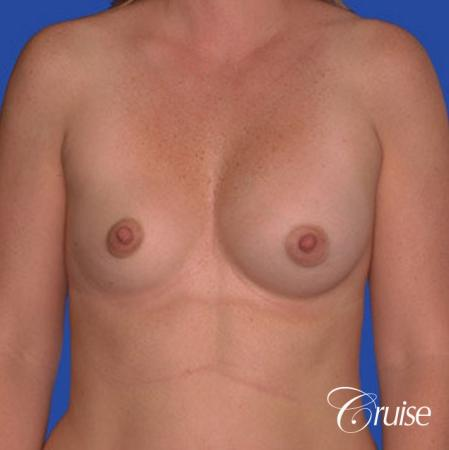 saline implant rupture newport beach plastic surgeon - Before Image 1