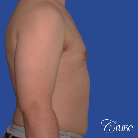 best scars for moderate gynecomastia -  After Image 3