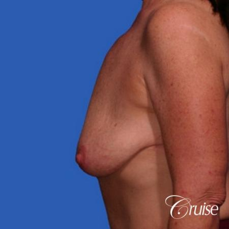 best breast lift anchor with saline augmentation - Before and After Image 2