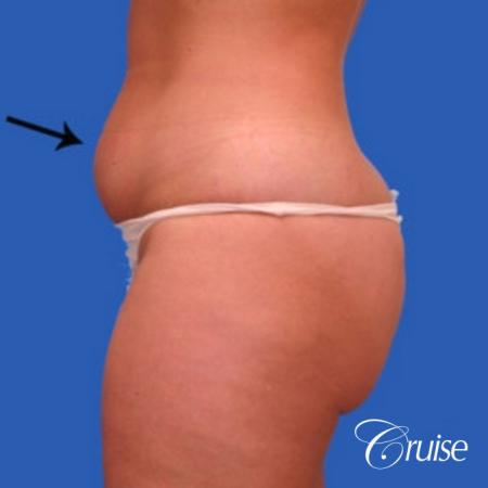 best liposuction abdomen flanks medial and lateral thighs dramatic - Before Image 2