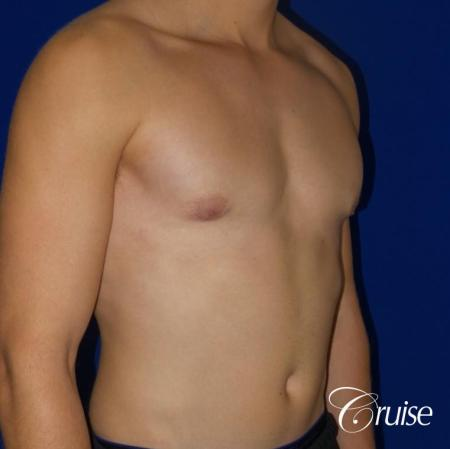 Mild Gynecomastia -Areola Incision - After Image 4
