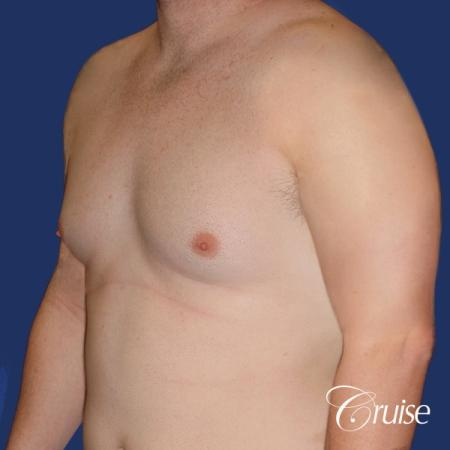 moderate chest gynecomastia and liposuction flanks - Before Image 2
