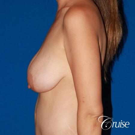 best reduction without implants in Newport Beach - Before Image 2