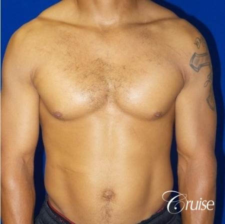 gynecomastia caused by testosterone - Before Image 1