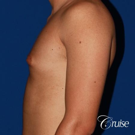 mild gynecomastia before and after with puffy nipple - Before Image 2