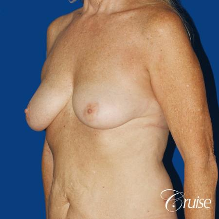 62 yr old woman with breast lift anchor and silicone implants - Before Image 3