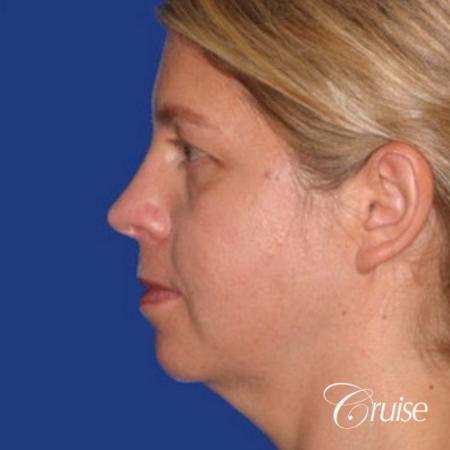 female who got large chin implant in Newport Beach - Before and After Image 2
