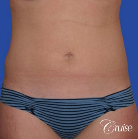 best skinny abs from liposuction abdomen and flanks -  After Image 1