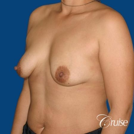 best before and after photos of young breast lift anchor scars - Before Image 3