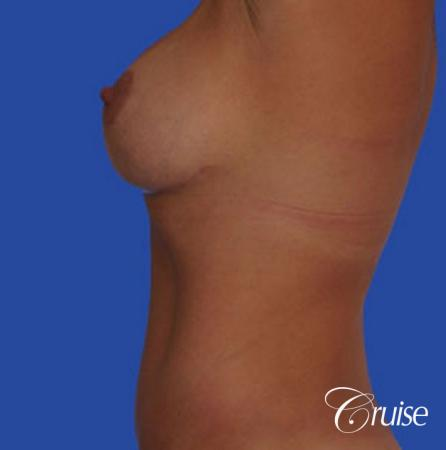 best silicone breast reduction surgery scars -  After Image 2