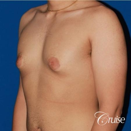 puffy nipple male breast on young adult - Before Image 3