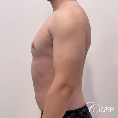 Gynecomastia: Patient 123 - After 3