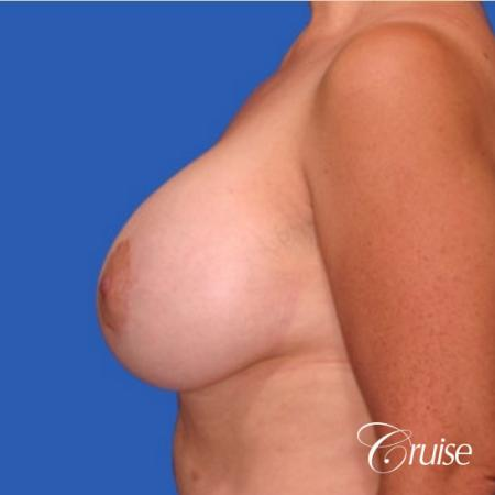 best breast lift donut results with saline augmentation -  After Image 2