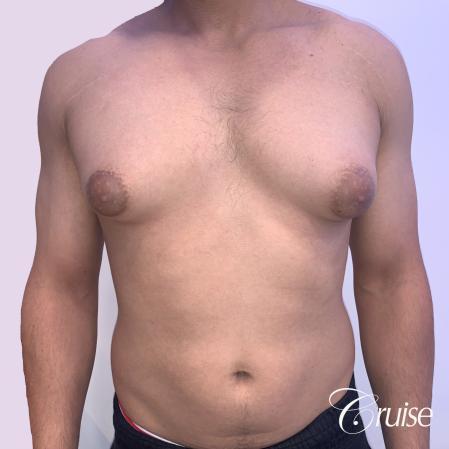 gynecomastia surgery - Before 1