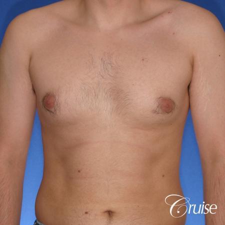 moderate gynecomastia puffy nipple - Before Image 1
