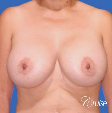 best breast lift donut results with saline augmentation -  After Image 1