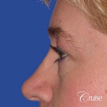 best specialist for upper eyelid surgery - Before Image 2