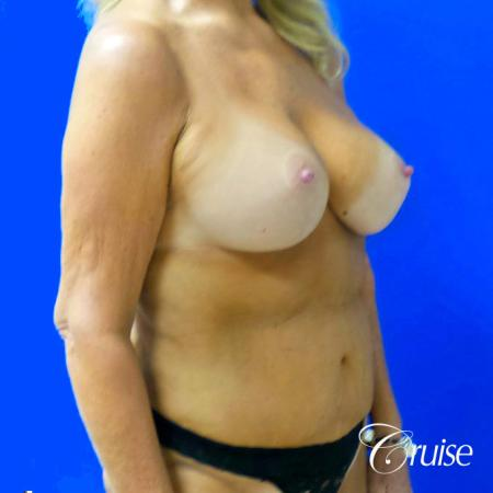 Breast Lift Anchor W/ Silicone Implants On Mature Woman - After Image 2