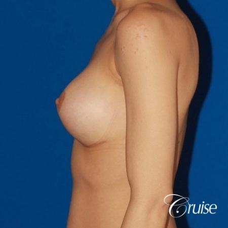 best breast lift revision with moderate profile silicone implants -  After Image 2