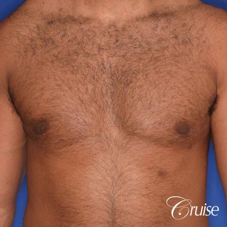 26 yo athletic patient with moderate gynecomastia -  After Image 1