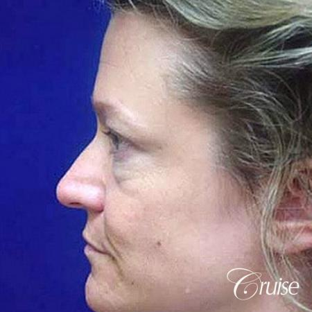 Fat Transfer - Tear Tough, Lower-Lids - After Image 2