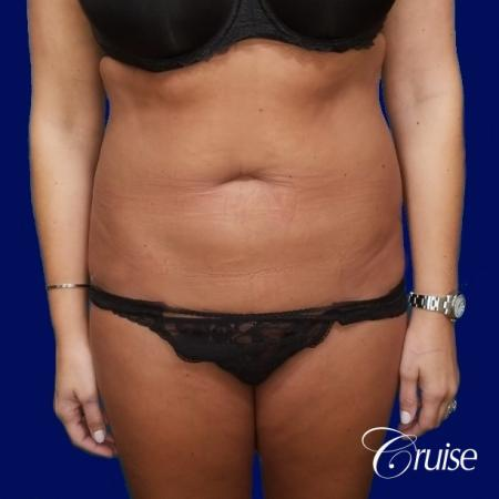 Liposuction Abdomen and Flanks with Midline Contour - Before Image 1