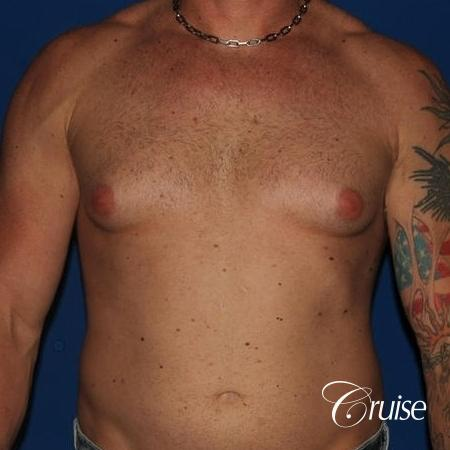 moderate gynecomastia with puffy nipple on athletic adult - Before Image 1
