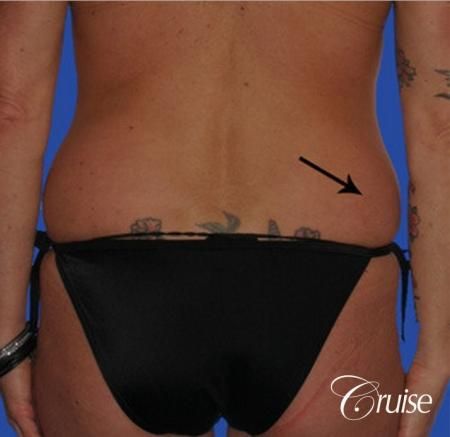 best female liposuction for small waist Newport Beach - Before Image 1