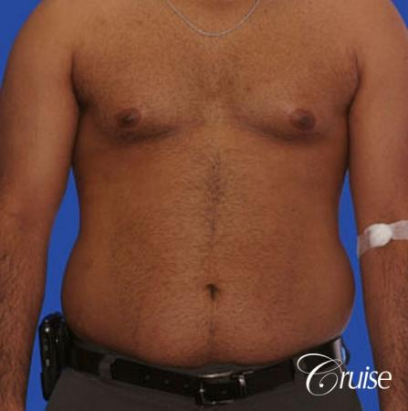 best liposuction abdomen and flanks on a male patient - Before Image