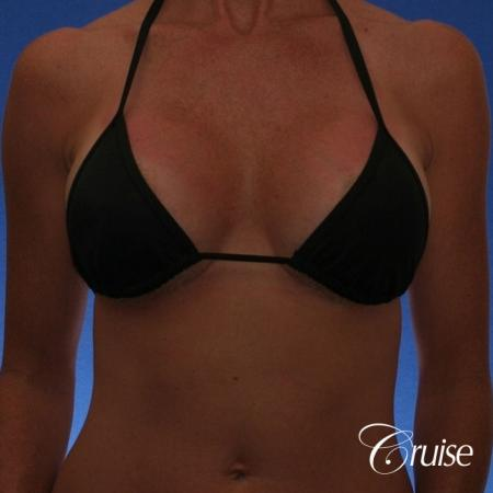 Best breast revision for low implants -  After Image 4