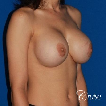 best breast lift revision with moderate profile silicone implants - Before Image 4