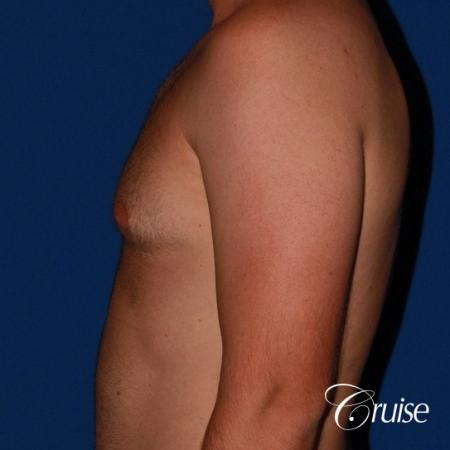 best puffy nipple surgery correction - Before Image 2