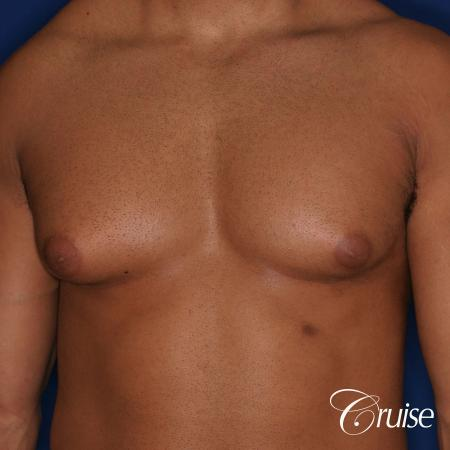 26 yo athletic patient with moderate gynecomastia - Before Image 1