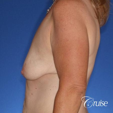 best anchor breast lift with specialist and plastic surgeon - Before and After Image 2