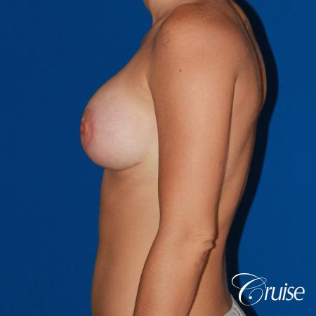 best pictures of young patients with silicone breast lift anchor -  After Image 2