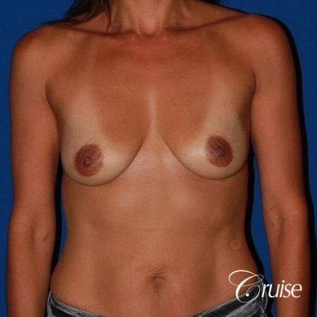 best breast lift on 41 yr old with HP silicone - Before Image 1