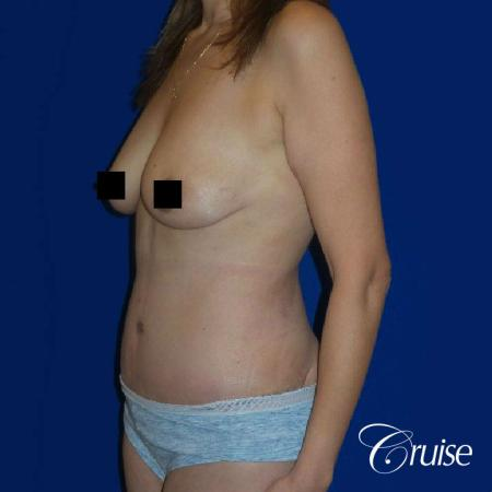 Best tummy tuck incisions orange county - After Image 2