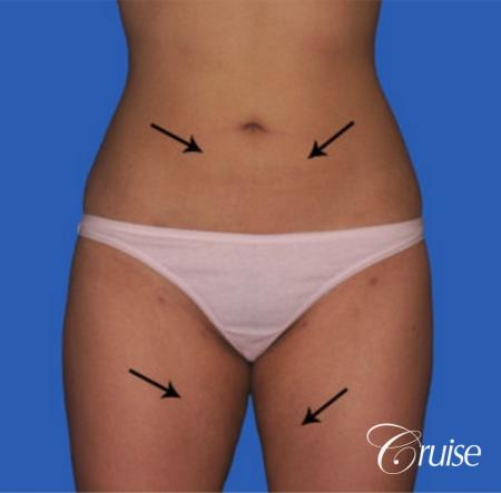 best before and after liposuction stomach and love handles - After Image