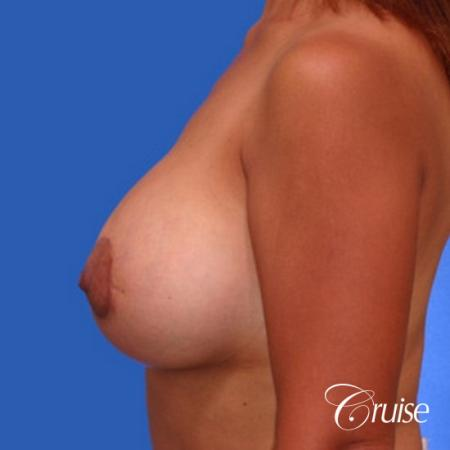 best breast lift donut before and after pictures in Newport Beach -  After 2