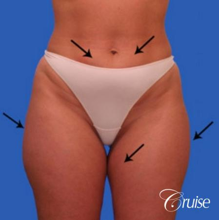 best liposuction abdomen flanks medial and lateral thighs dramatic - Before Image