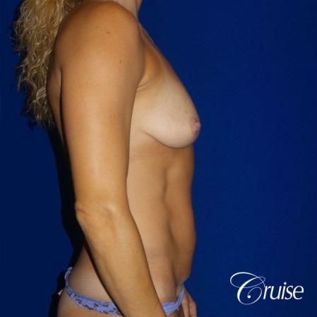 Mommy Makeover Best plastic surgeons - Before 2